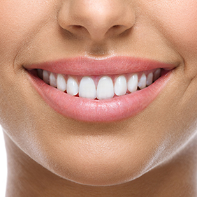 closeup of smile with white heatlhy teeth
