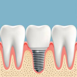 Zubní implantáty Praha 2