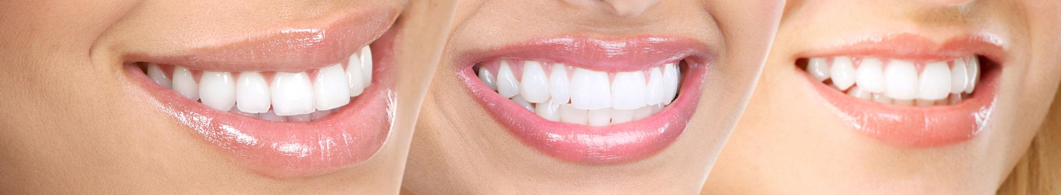 Bělení zubů stomatologie Praha 2